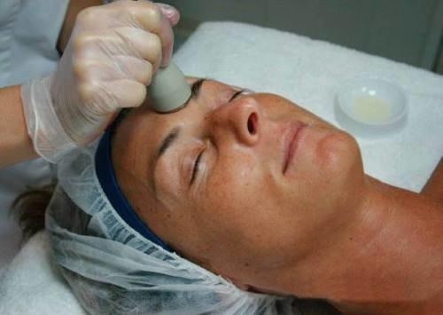 Tratamiento facial con Meso-Vac
